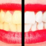 10 Tips For A Perfect Hollywood Smile 6