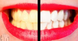10 Tips For A Perfect Hollywood Smile 4